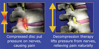 Chiropractic Spinal Decompression